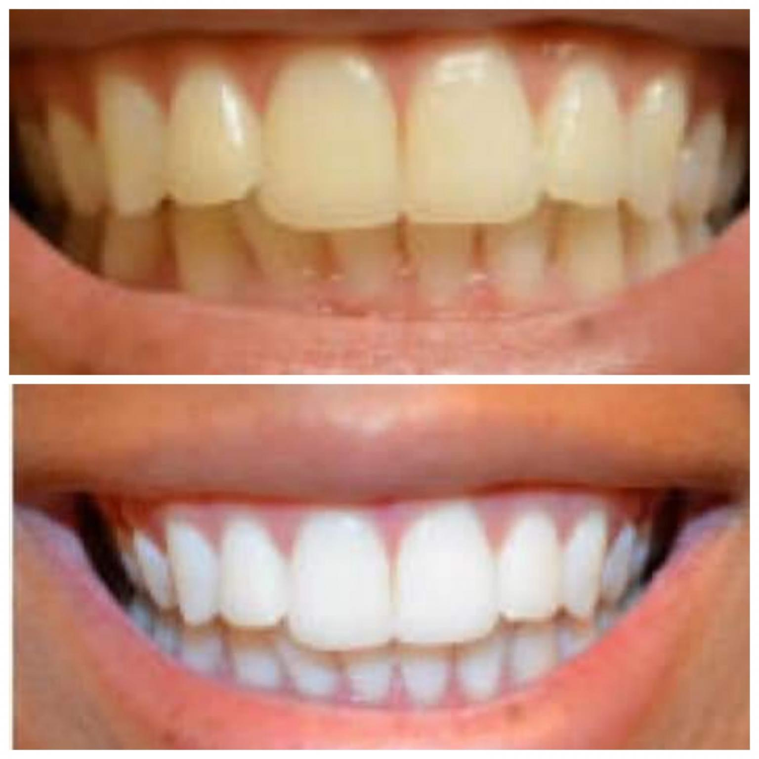 3d White Crest Teeth Strips In Sk7 Stockport For 6 00 For Sale