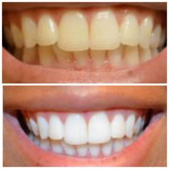 Teeth Whitening Strips In L4 Liverpool For 20 00 For Sale Shpock