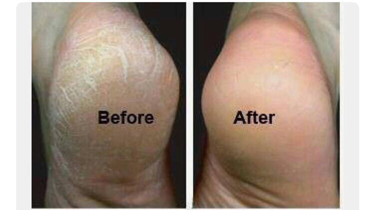 how to remove hard skin from foot