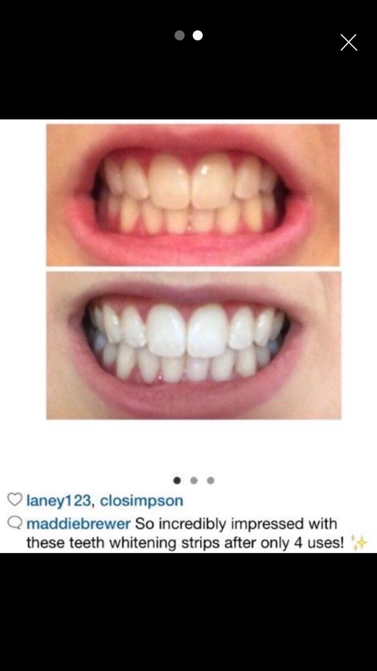 Teeth Whitening Luxe 3d Crest 14 Strips In Ha9 Brent For 17 00