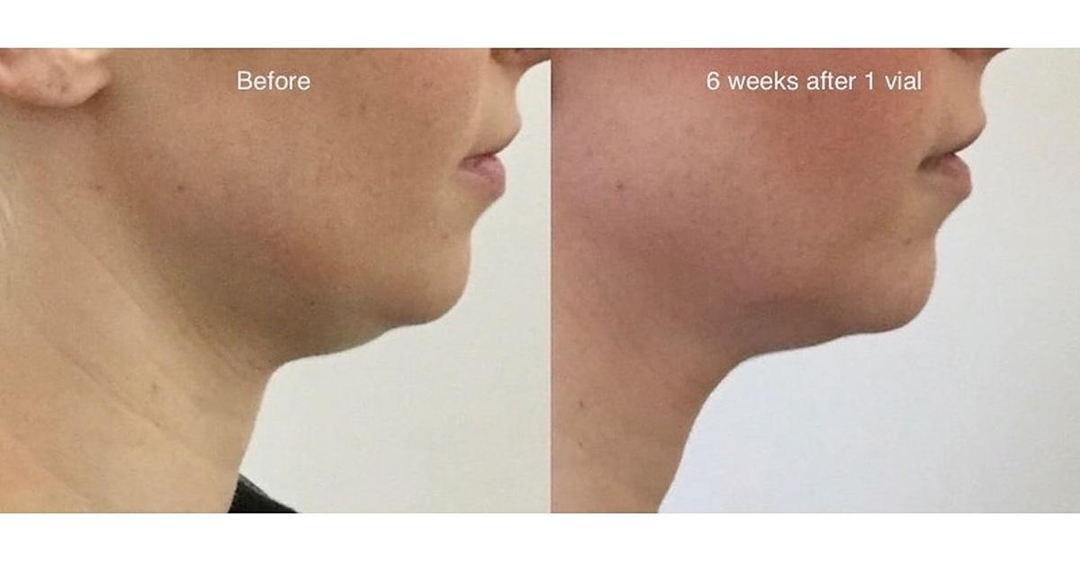 Fat Dissolving Injections (+Botox & Fillers) in NW8 London