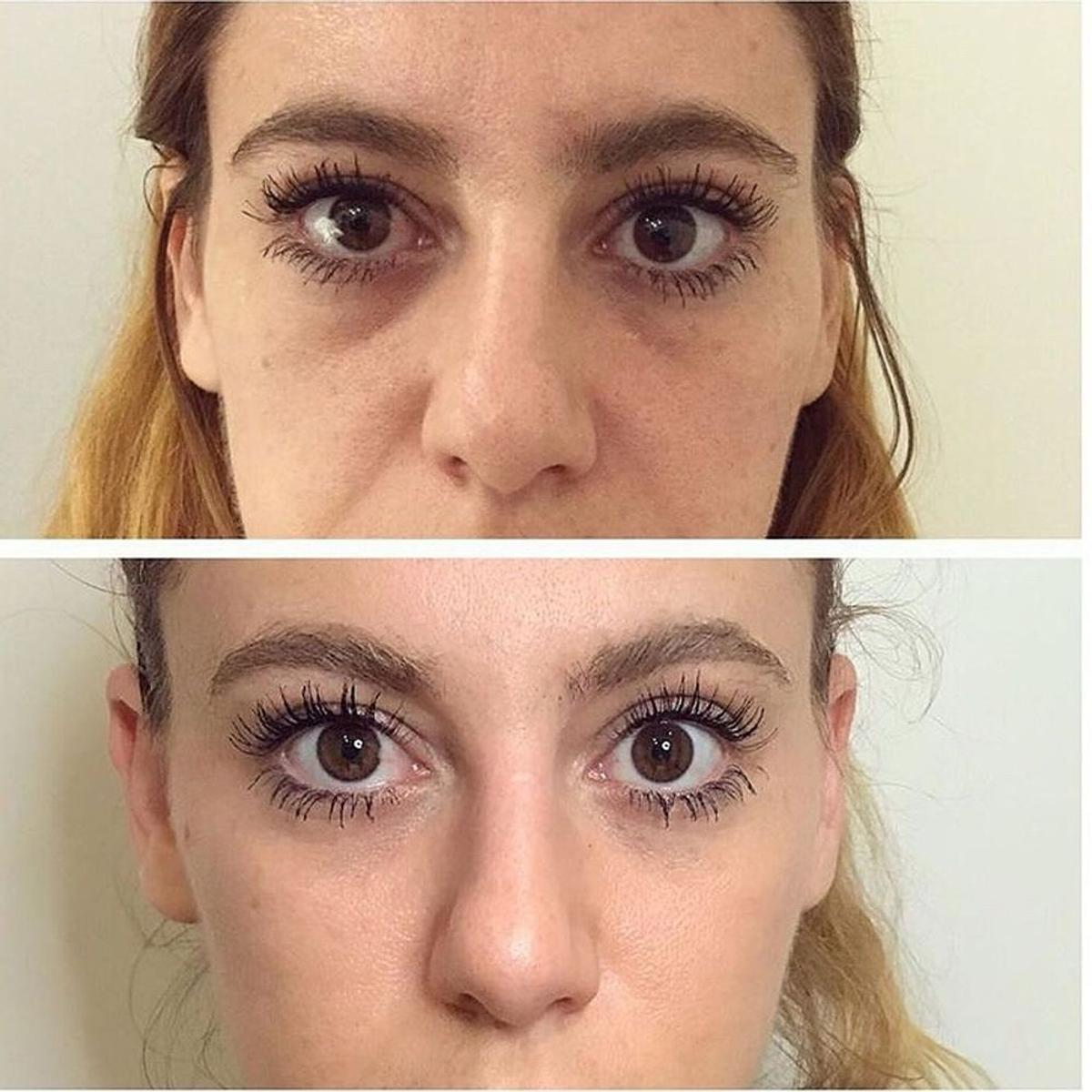 DOCTORS CLINIC Requires Before & After Models in NW8 London