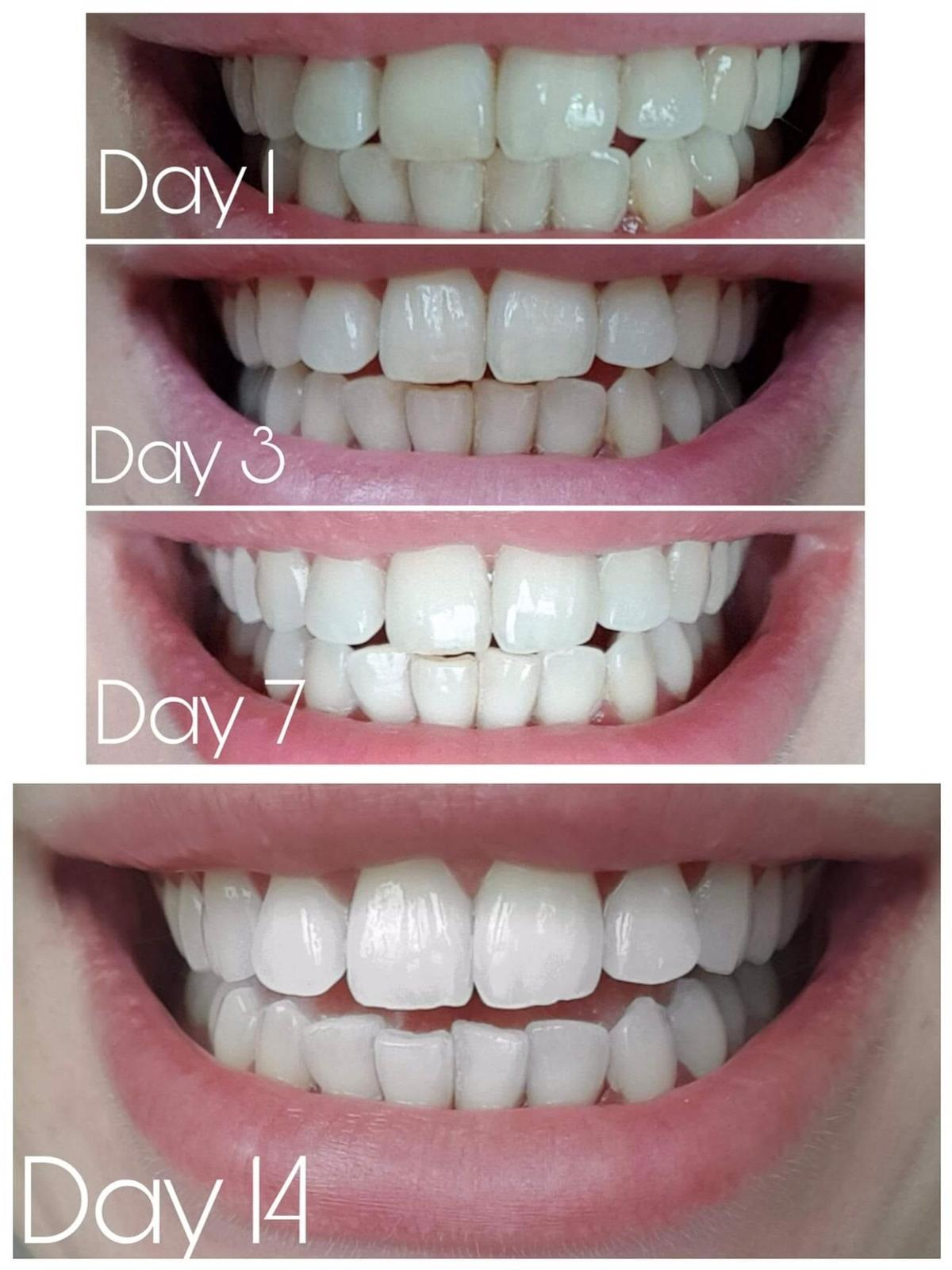 Complete Care Whitening Toothpaste In Sw19 London Borough Of