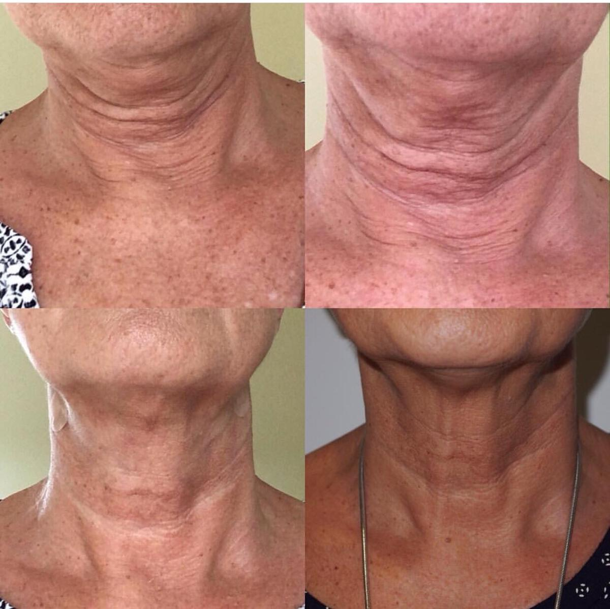Models NEEDED PROFHILO Treatment in N3 London for £350 00