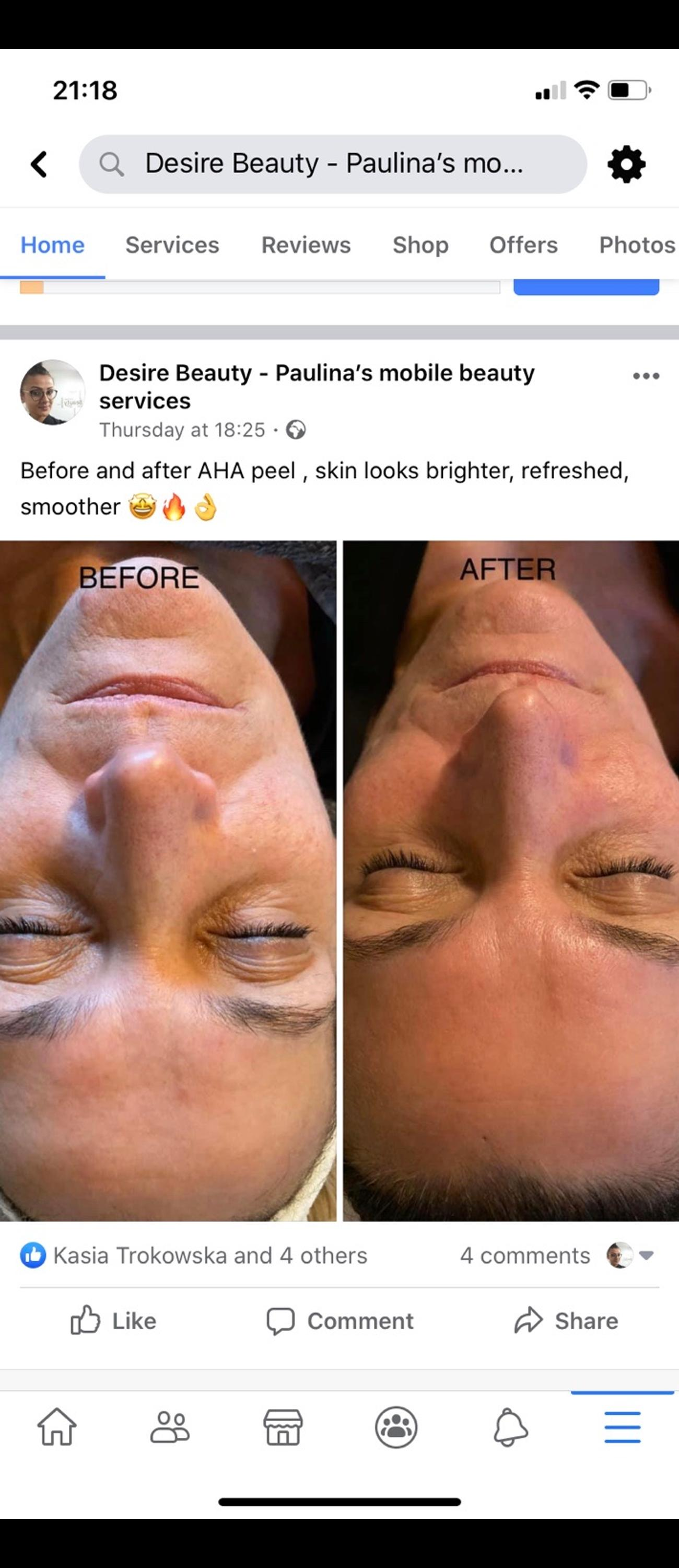 AHA peel facial £30 for an hour Waxing and massage available, reflexology and Indian head massage, manicures and pedicures, Burnley and surrounding areas, low prices high quality services